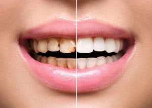 Discoloured Teeth vs White Teeth