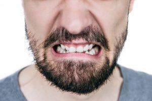 Damaged and crooked teeth